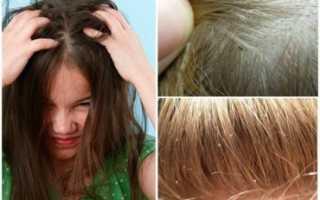Как понять что у ребёнка вши