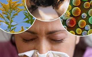 Где сделать анализ на аллергию
