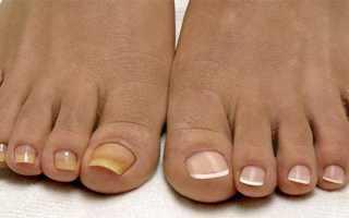 Как и чем лечить грибок ногтей
