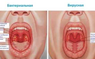 Как лечится вирусная ангина