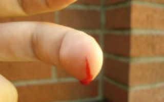 Как остановить кровь из пальца