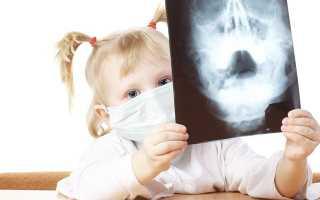 Как лечить гайморит у детей