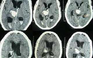 Что такое гидроцефальный синдром