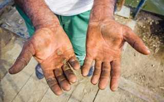 Как вылечить мозоль на пальце руки