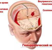 Что такое геморрагический инсульт