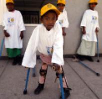 Какие симптомы полиомиелита