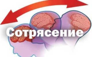 Какие виды сотрясения мозга бывают