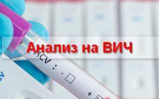 Сколько стоит сдать анализы на ВИЧ